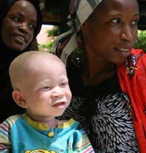 L'albinismo in Africa, tra rituali magici e omicidi